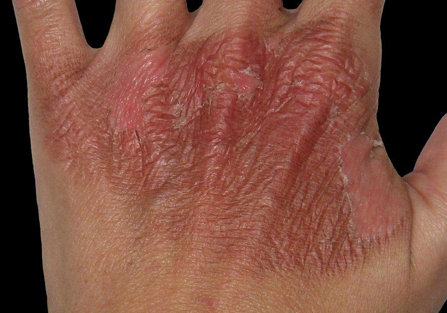 Dizziness and Vertigo can Cause Burns